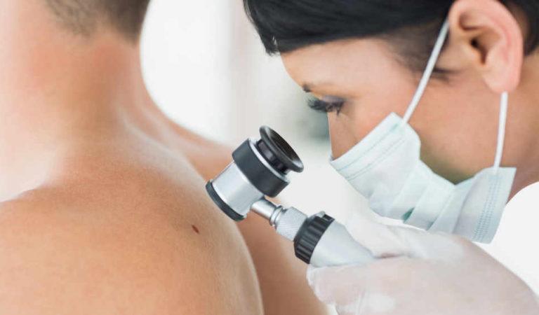 Piemonte: il melanoma colpisce duro, oltre 1.100 nuovi casi l'anno. Le nuove cure